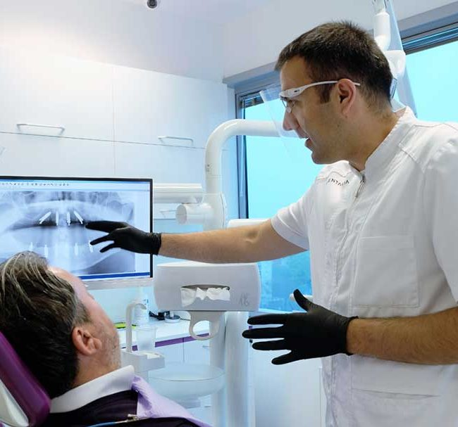 Dentisti-Croati-implantologia